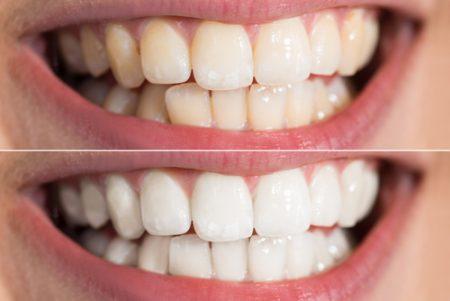 blanqueamiento dental Torre del Mar