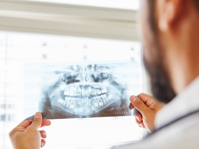 cirugía maxilofacial Vélez Málaga