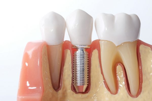 implantes dentales Málaga