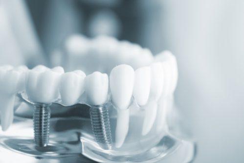 implantes dentales Torre del Mar y Vélez Málaga