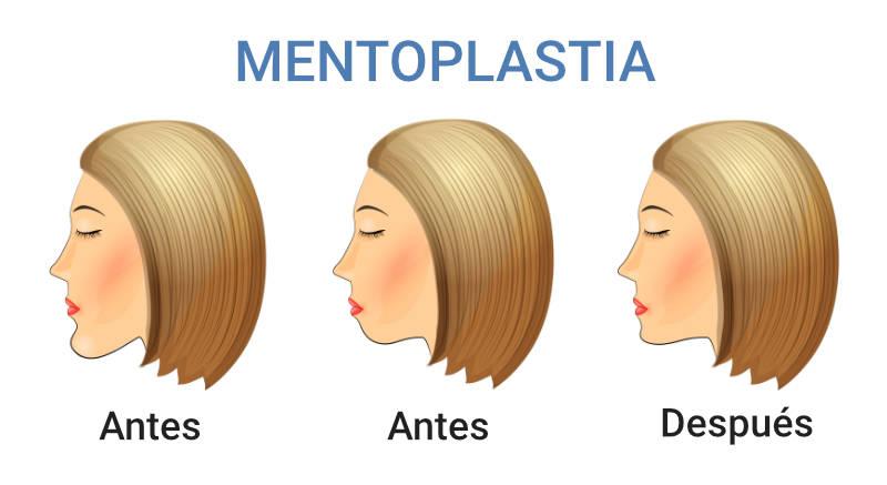 Antes y después de la mentoplastia