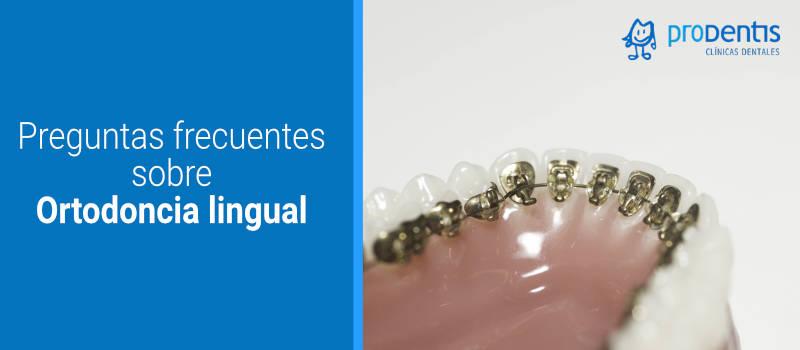 Preguntas frecuentes sobre Ortodoncia lingual