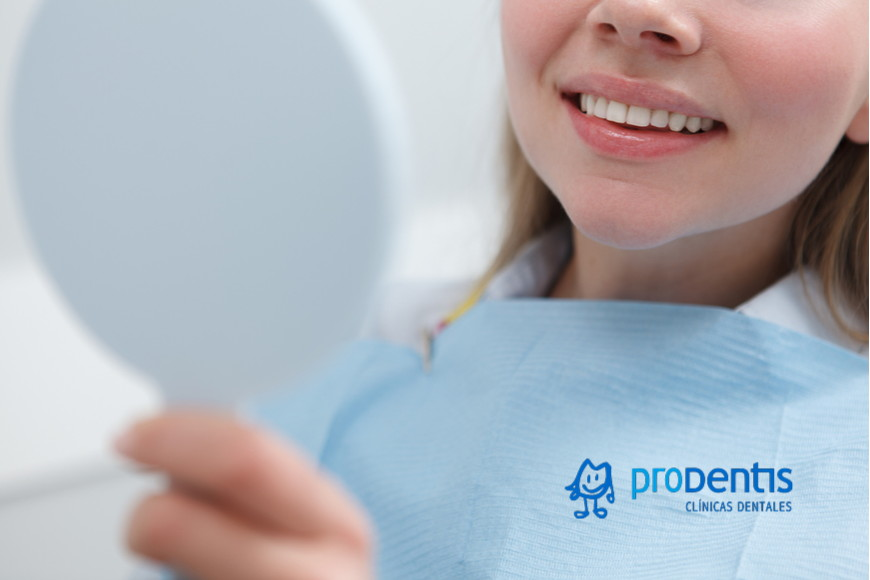 carillas dentales resina o porcelana