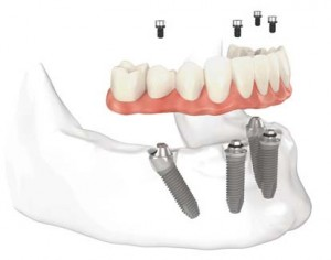Implante dental Malaga