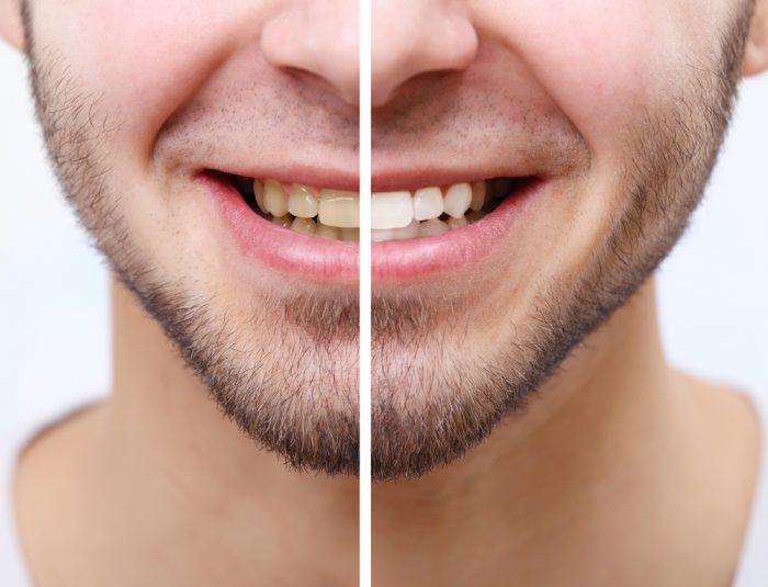 blanqueamiento dental Málaga