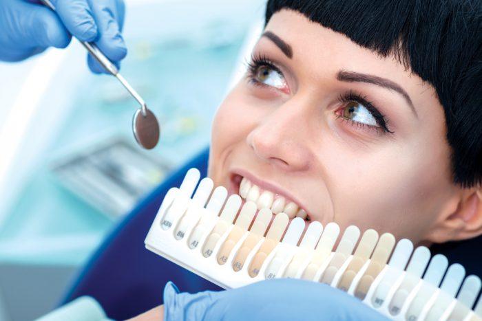 blanqueamiento dental Vélez-Málaga