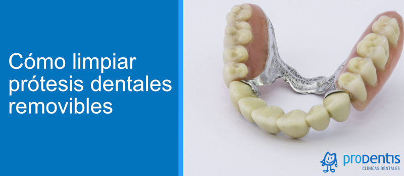 como limpiar protesis dental removible