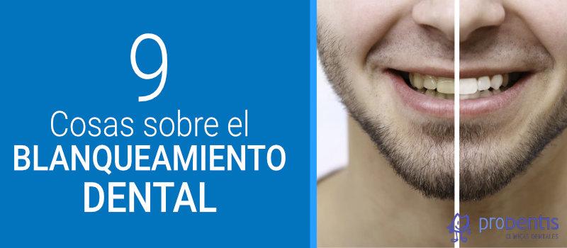 cosas que debes saber sobre el blanqueamiento dental