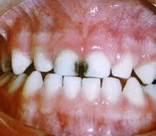 Ortodoncia Malaga