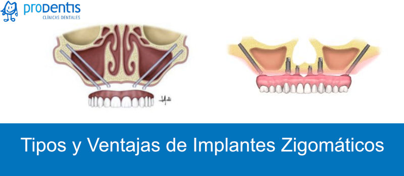 implantes zigomaticos