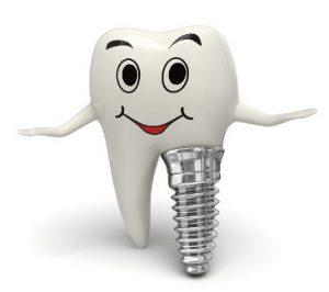 especialistas en implantes dentales Málaga