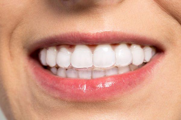 ortodoncia invisible Málaga
