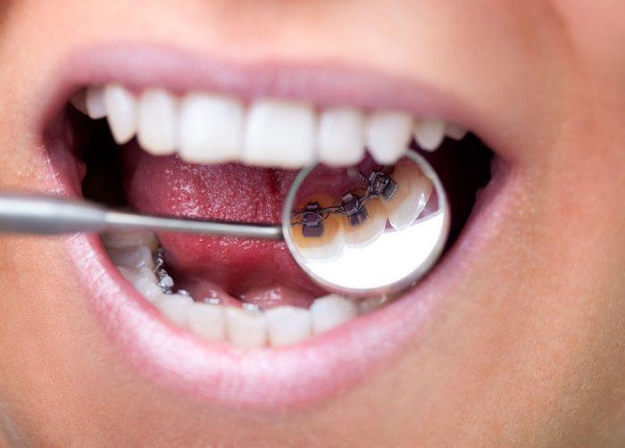 ortodoncia lingual Málaga