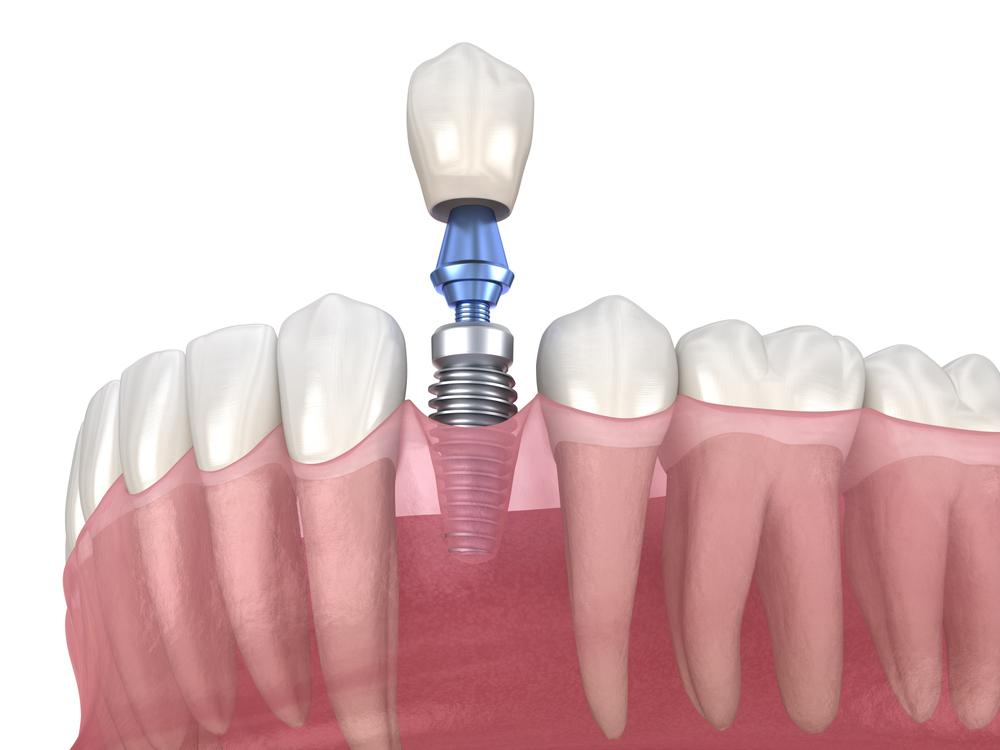 implante dental proceso